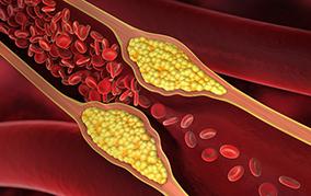 """健康的で長生きするには見た目の若さよりも""""血管年齢""""が大切"""