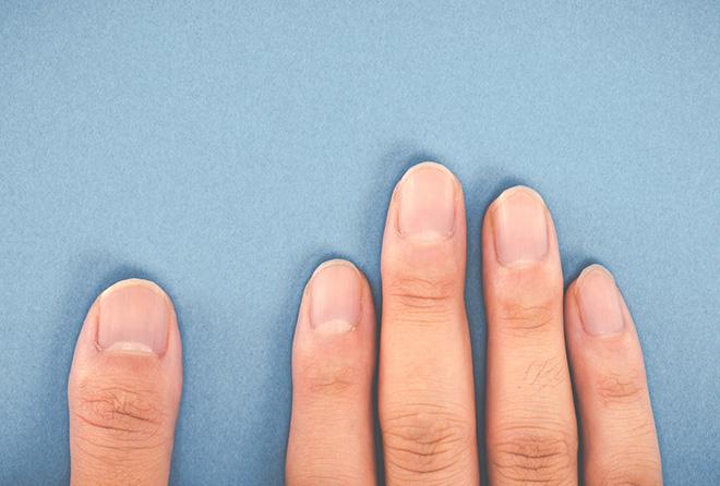 あなたの爪は何色? 爪でいろんなことがわかっちゃう