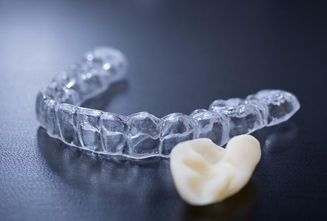 歯ぎしりで歯が割れる!? 顎にも凄い負担がかかっている!