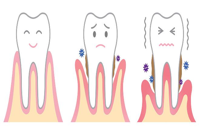 甘く見ないで歯肉炎、こんな症状があったら要注意!