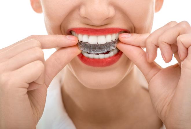高いとは聞くけど…気になる「歯列矯正」の料金相場は?
