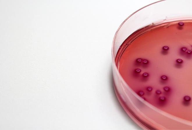 ヒトの体には細菌がいっぱい! その種類や特徴をチェック