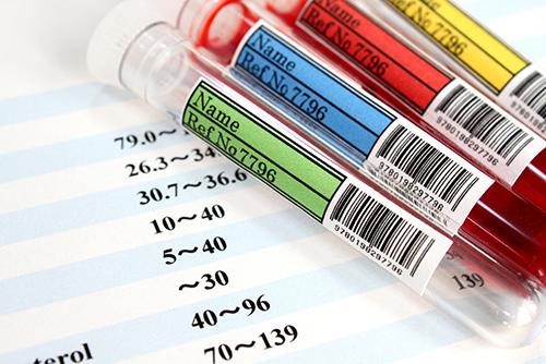 肝臓の検査結果の見方